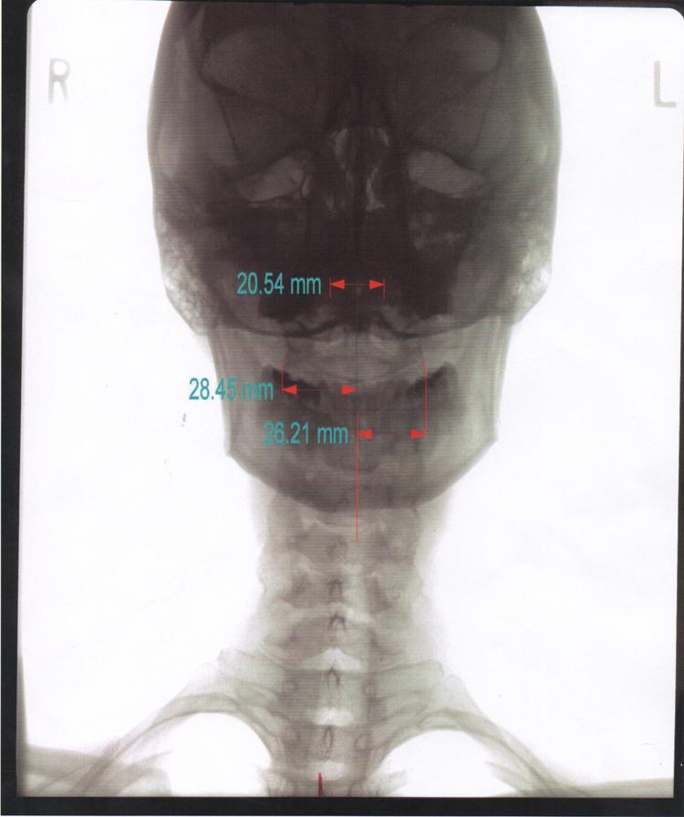 skullscan